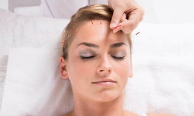 Everything You Need To Know About Acupuncture (And Its Benefits)