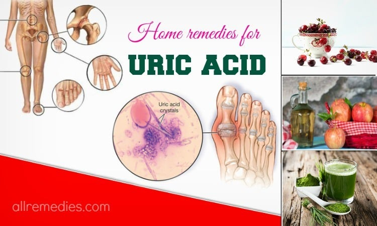 12 natural home remedies for uric acid problems
