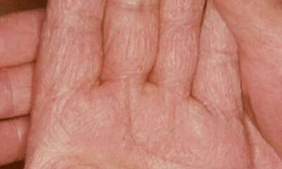Hand Fungus (Tinea Manuum): Causes, Symptoms Natural Treatments