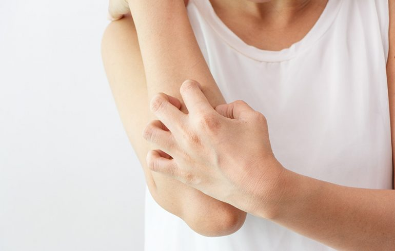 A Natural Approach to Treating Eczema