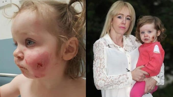 """A toddler has been scarred for life after being bitten 15 times by Somali boys who """"took at least ten chunks"""" out of her face and then """"strangled"""" her until she was """"blue"""" — and the media is refusing to report the ethnicity of the attackers."""