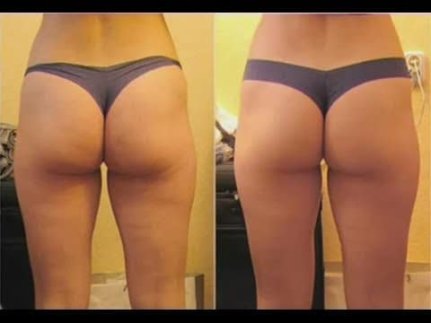 How to get rid of thigh back cellulite?
