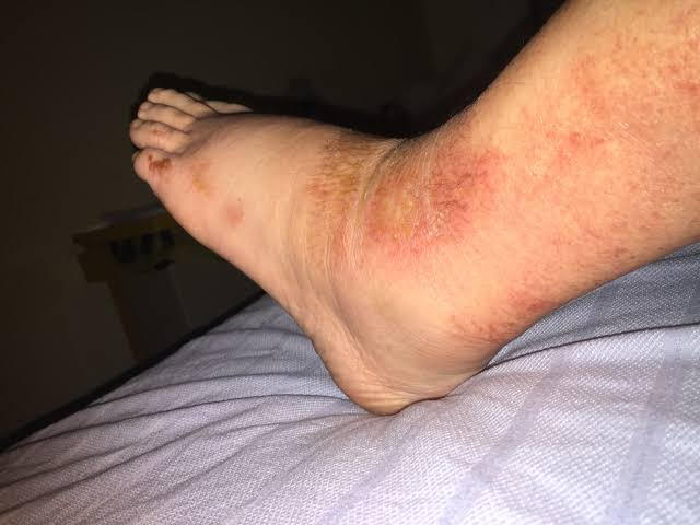 Understanding The Different Types of Edema