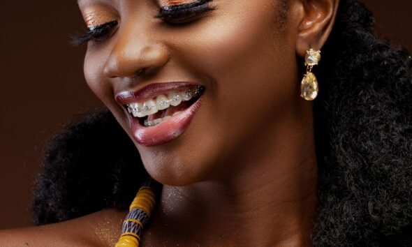 Things You Should Know About Braces
