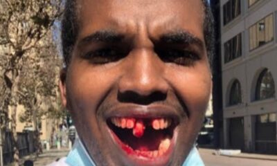 GoFundMe Removes Fundraiser For Right Wing Protester Who Has His Front Teeth Knocked Out By Antifa