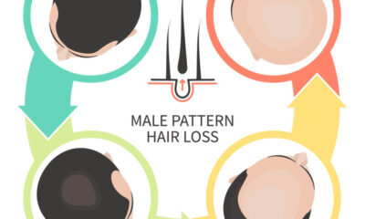 Male pattern baldness - Q Hair Spray