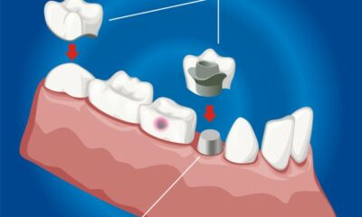 How Dental Implants Full-Mouth Restoration is an All-in-One Solution to Your Confident Smile?